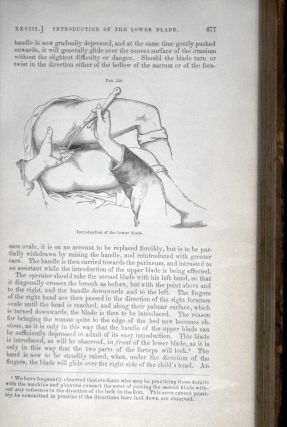 A System of Midwifery; Including the Diseases of Pregnancy and the Puerperal State, 2nd American from the 2nd and Revised English Edition