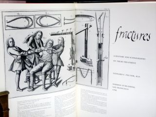 Fractures: a History and Iconography of Their Treatment